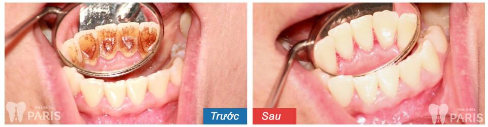 Có nên lấy cao răng thường xuyên để tránh hôi miệng không? BS tư vấn 3