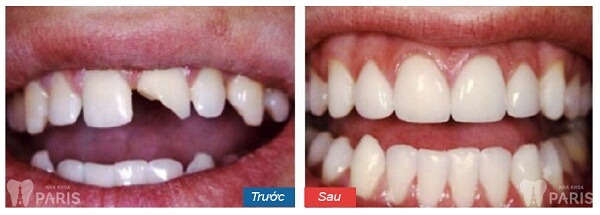 Giải pháp tối ưu khắc phục răng khiếm khuyết sứt, mẻ, hở kẽ 3