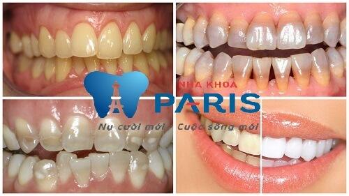 Những trường hợp nên áp dụng tẩy trắng răng Laser Whitening