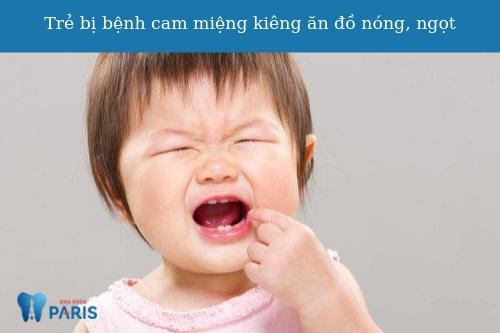 Trẻ bị bệnh cam miệng kiêng ăn gì