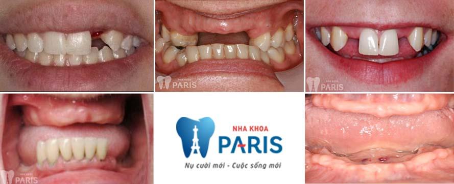 Những trường hợp sử dụng trồng răng implant