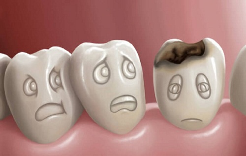 Chữa sâu răng bằng lá bàng theo hướng dẫn của chuyên gia 2
