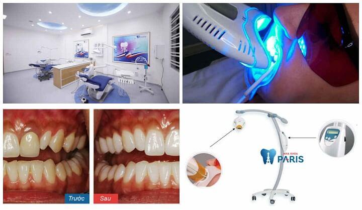"""Tẩy trắng răng Laser Whitening - Trắng gấp """" 8 lần"""" - CAM KẾT an toàn 3"""