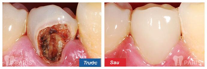 7 cách chữa sâu răng bằng bột nghệ đơn giản và hiệu quả tại nhà 5
