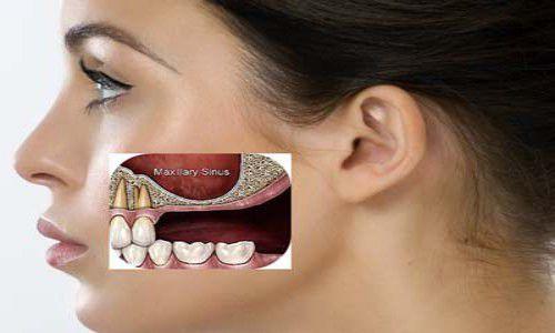 Hạn chế tối đa tình trạng tiêu xương với trồng răng implant