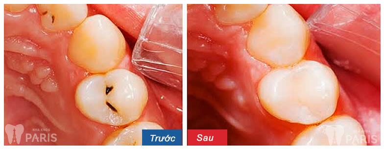 7 cách chữa sâu răng bằng bột nghệ đơn giản và hiệu quả tại nhà 4