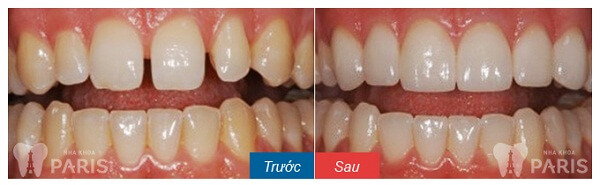 Giải pháp tối ưu khắc phục răng khiếm khuyết sứt, mẻ, hở kẽ 5