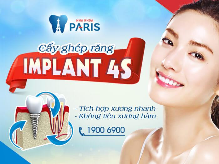 Trồng răng implant với công nghệ 4S đạt chuẩn quốc tế