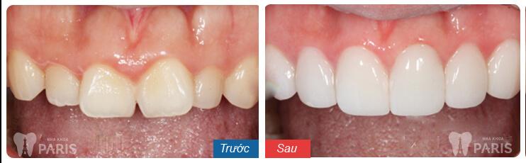 Quy trình làm răng sứ 1Day Tech nhanh gọn, chuẩn Quốc tế 5