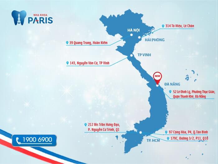 Niềng răng ở đâu tốt uy tín an toàn HÀNG ĐẦU - NK PARIS 3