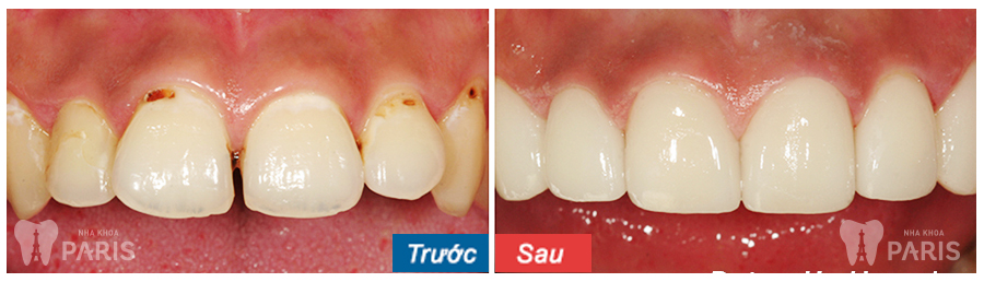 bọc răng Composite 3
