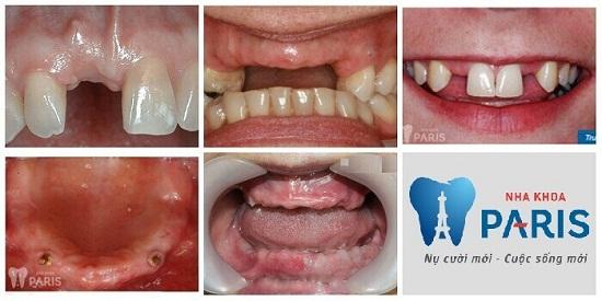 Đặt Implant công nghệ cao và xử lý bề mặt trụ răng tân tiến 1
