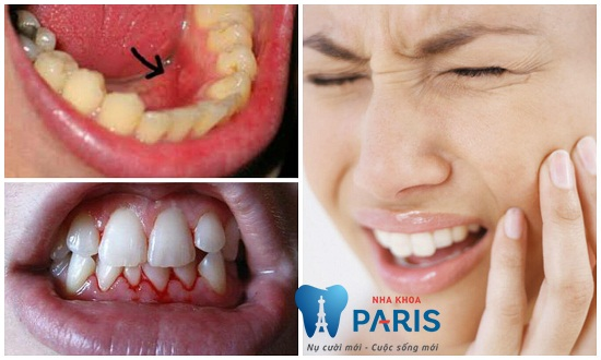 Đặt Implant công nghệ cao và xử lý bề mặt trụ răng tân tiến 3