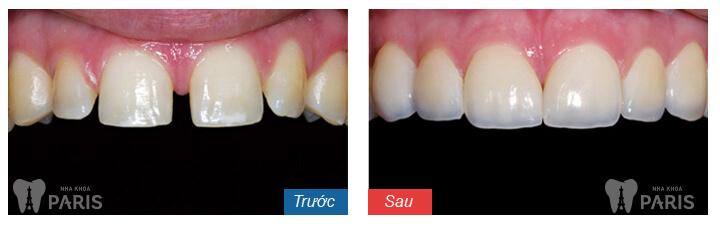 Chỉnh răng thưa ở đâu đẹp và uy tín hiện nay? 3
