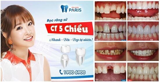 Giới thiệu dịch vụ làm răng tại Paris - nha khoa thẩm mỹ Vinh 3