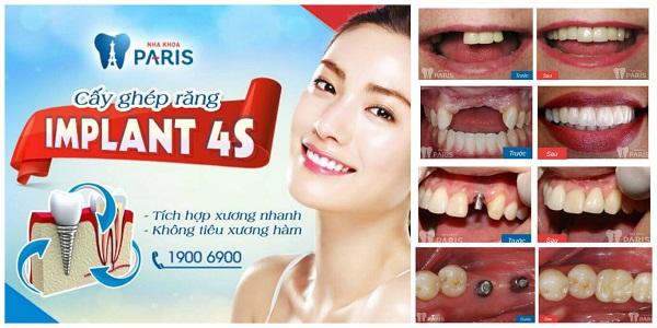 Giới thiệu dịch vụ làm răng tại Paris - nha khoa thẩm mỹ Vinh 9