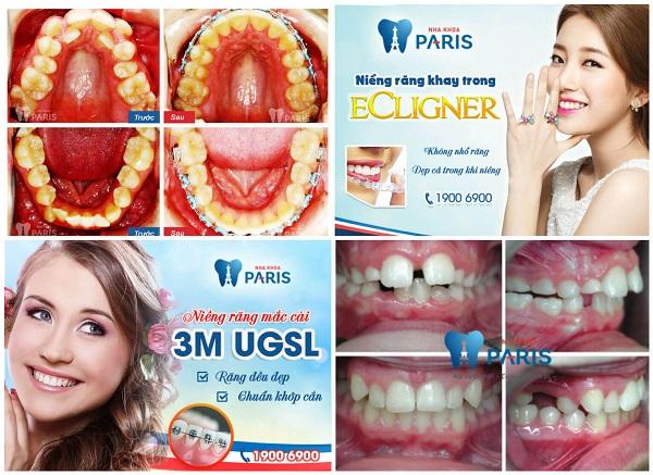 Giới thiệu dịch vụ làm răng tại Paris - nha khoa thẩm mỹ Vinh 7