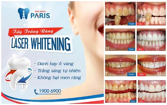 Giới thiệu dịch vụ làm răng tại Paris - nha khoa thẩm mỹ Vinh 5