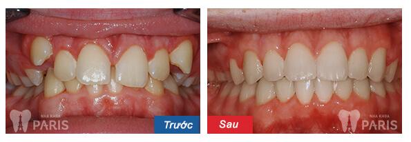 Chỉnh răng thưa ở đâu đẹp và uy tín hiện nay? 2