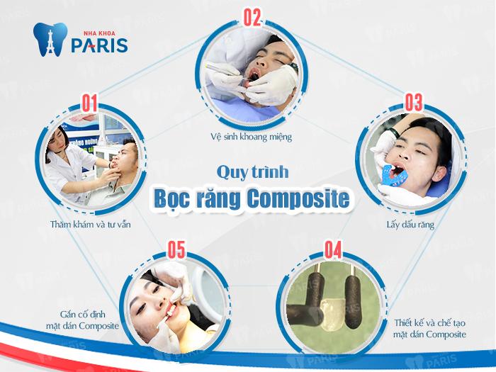 Quy trình bọc răng Composite 3