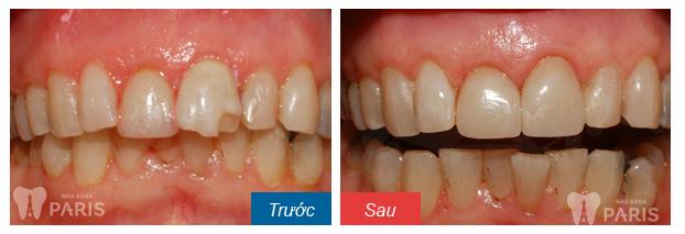 Bọc răng Compo 5S