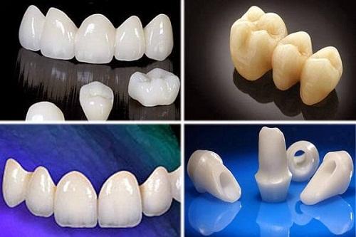 Bọc răng sứ bao nhiêu tiền thì rẻ nhất hiện nay mà vẫn chất lượng 2