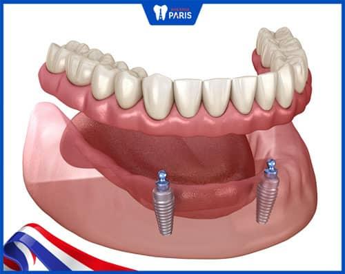 trồng răng giả tháo lắp trên implant