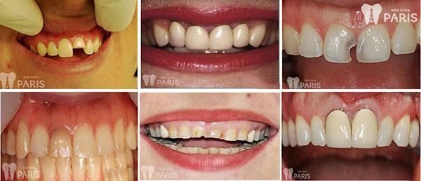 Răng sứ thẩm mỹ công nghệ 1Day - Technology-3