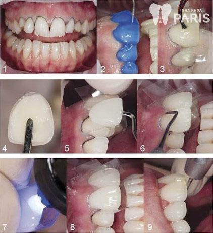 Răng sứ thẩm mỹ công nghệ 1Day - Technology-2