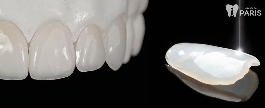 Răng sứ thẩm mỹ công nghệ 1Day Technology 1