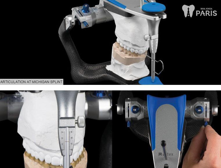 Răng sứ sứ thẩm mỹ công nghệ 1 day technology 5