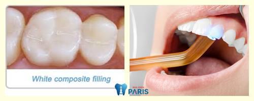 Hàn răng cửa bị mẻ ĐẸP & ĐỘ BỀN CAO bảo hành toàn quốc 2