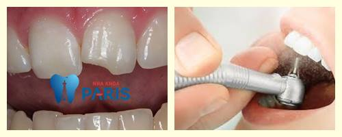 Hàn răng cửa bị mẻ ĐẸP & ĐỘ BỀN CAO bảo hành toàn quốc 1