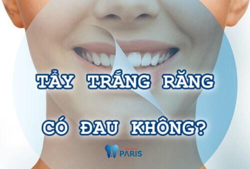 Tẩy trắng răng có đau không? Tư vấn cách tẩy trắng răng an toàn