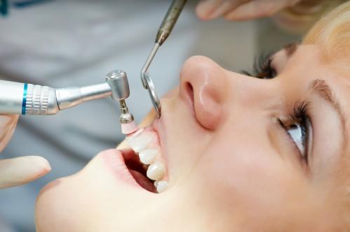 """Nguyên nhân sâu răng và cách """"DIỆT TẬN GỐC"""" sâu răng!! 2"""