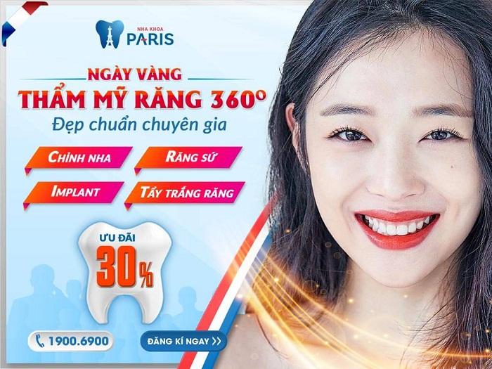 OFF 30% Ngày vàng thẩm mỹ răng toàn diện - đẹp chuẩn chuyên gia