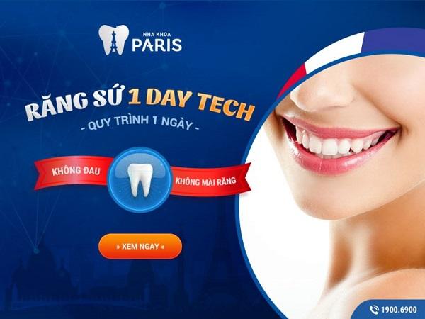 làm răng sứ Direct Veneer có tốt không? Công nghệ 1 day tech