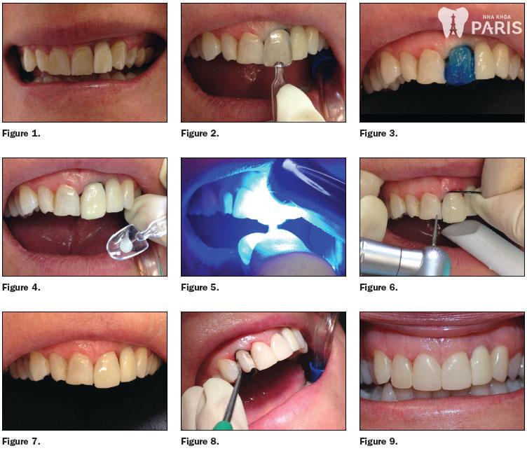 Quy trình làm răng sứ 1Day Tech nhanh gọn, chuẩn Quốc tế 1