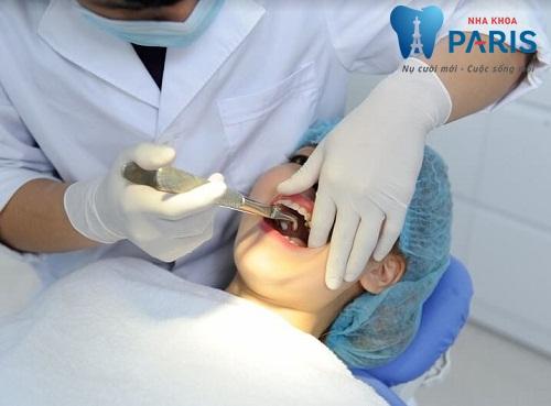 """Mọc răng khôn hàm trên nên chăm sóc ra sao để """"Tránh Nguy Hại""""? 1"""