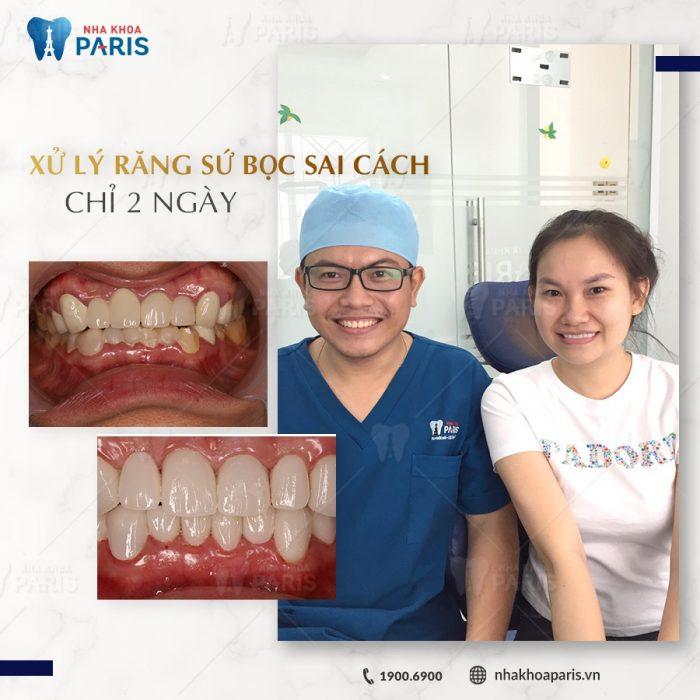 bọc răng sứ tại nha khoa Paris Cộng Hòa
