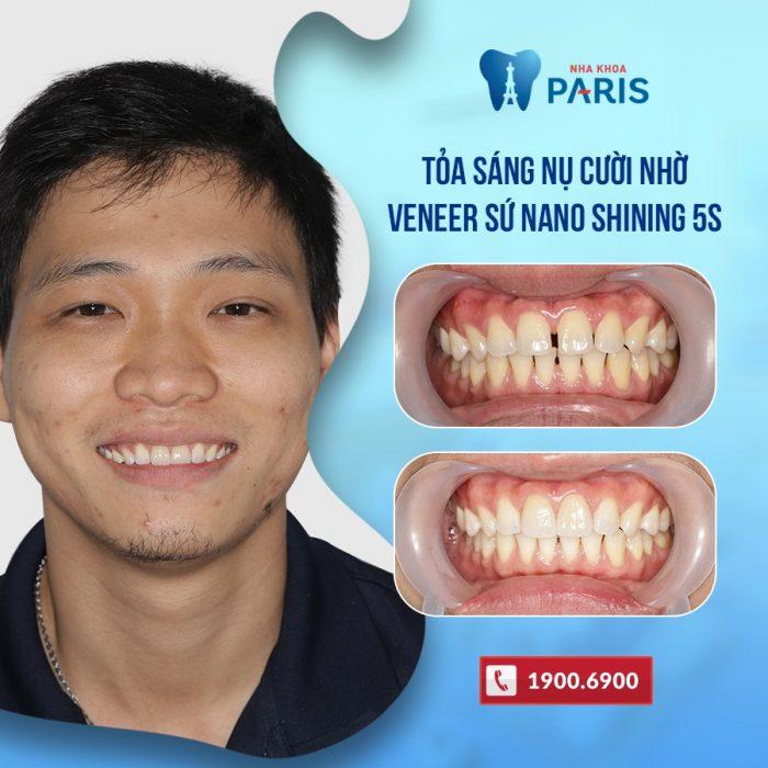 dán sứ veneer chữa răng thưa tại nha khoa paris cộng hòa