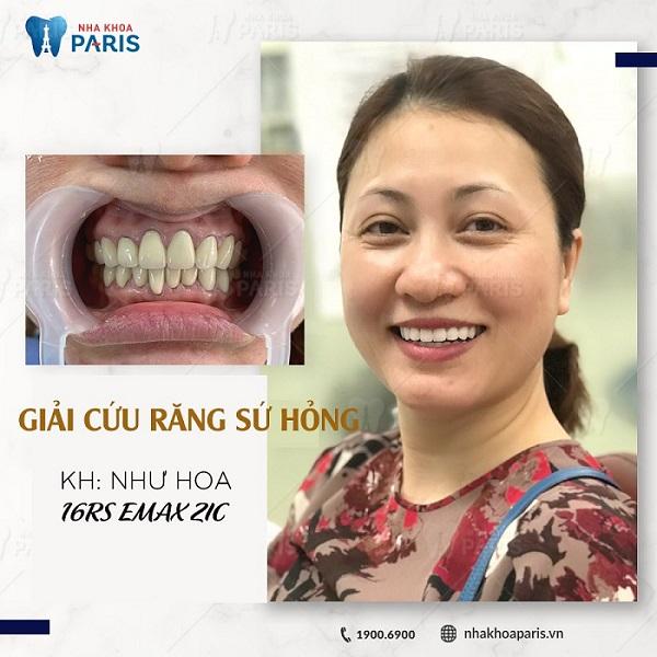 Khách hàng Như Hoa bọc răng sứ Emax công nghệ Nano 5S