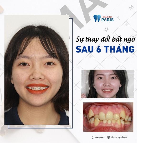 Thay đổi ngoại mục sau 6 tháng niềng răng