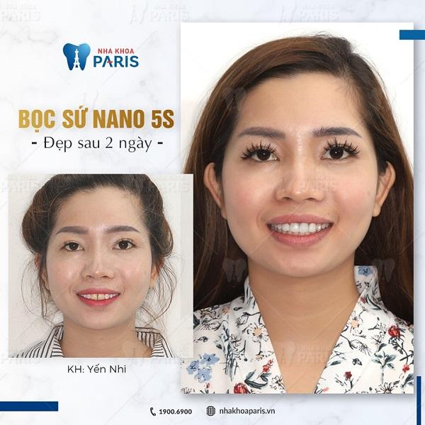 Bọc răng sứ Nano 5S sau 2 ngày