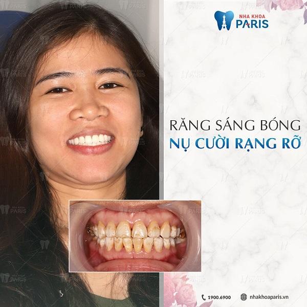 Sở hữu nụ cười rạng rỡ khi bọc răng sứ Nano 5S tại Paris