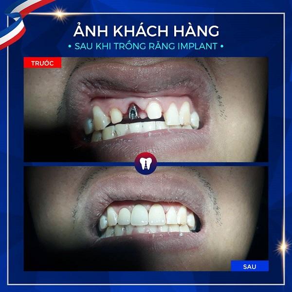 Trồng răng Implant giải pháp hoàn hảo khi mất răng