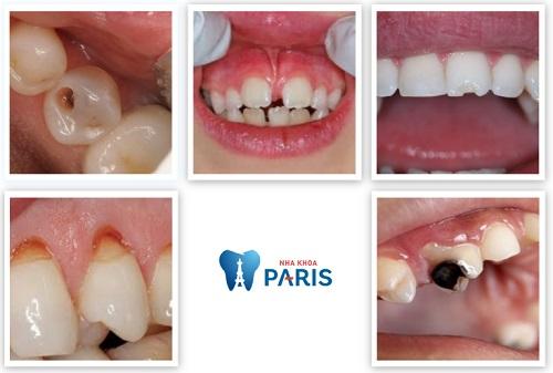 Trám răng thẩm mỹ Laser Tech - Phục hình răng xấu nhanh chóng, tiết kiệm