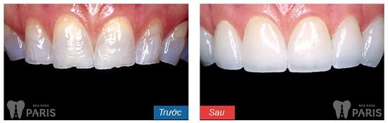 Nên làm răng ở nha khoa Paris 143 Nguyễn Văn Cừ - TP Vinh không? 26
