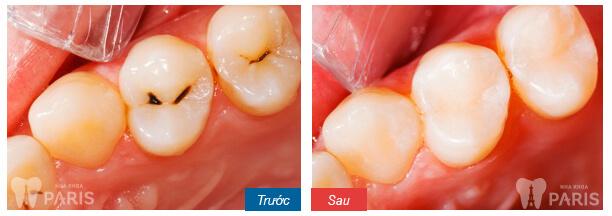 Nên làm răng ở nha khoa Paris 143 Nguyễn Văn Cừ - TP Vinh không? 8