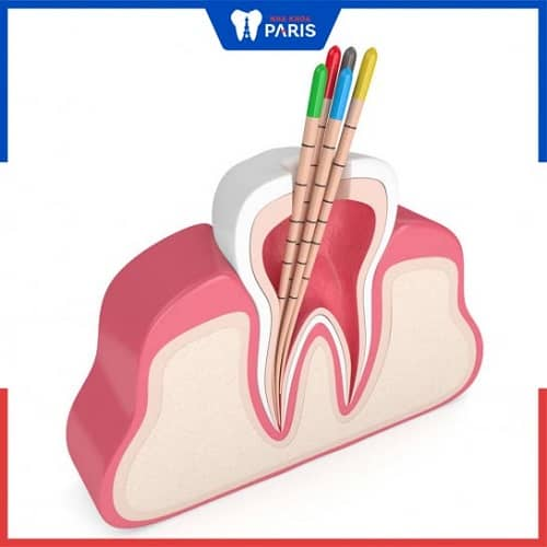 quy trình điều trị tủy - định hình ống tủy